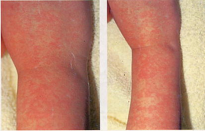 咳、鼻等の軽度の上気道炎症状に引き続き、顔面の紅斑、ついで手足の紅斑が現れます。発熱はほとんど見られません。かゆみはないか、あっても軽いものです。